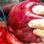 Hemihepatektomie rechts (Entfernung der rechten Leberhälfte)