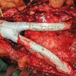 Gefäßchirurgie: Aortenbifurkationsprothese (Ersatz der Aortengabel)