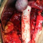 Gefäßchirurgie: Infrarenaler Vena Cava Ersatz (Ersatz der unteren Hohlvene)
