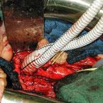 Gefäßchirurgie: Aortenanastomose einer Bifurkationsprothese (Ersatz der Aortengabel)