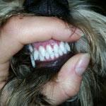 наши чудесные новые зубки!