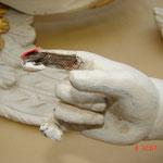 Detailfoto mit Schäden an den Gliedmaßen