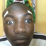 Viktor Mbele, 16 Jahre alt, beidseits Grauer Star, seit 2 Jahren nicht mehr zur Schule wegen Blindheit