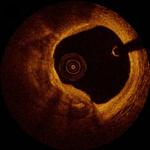 Кальцинированная коронарная артерия.