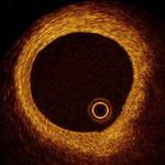 Нормальный просвет коронарной артерии.