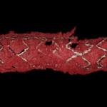 Стент в просвете коронарной артерии. ОКТ в режиме 3D.