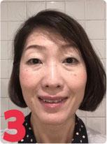 顔ヨガビフォーアフター2か月後の表情