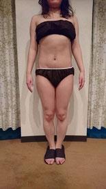 筋膜リリース,アフター,成果,ヒップ,太もも