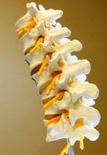 Wirbelsäule, Bandscheiben, Spondylose, Arthrose