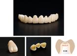 たかす歯科クリニック補綴