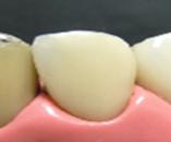 八戸市 くぼた歯科 セラミック 白い歯 ハイブリッド おすすめ