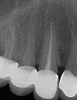 Wurzelgefüllter Zahn