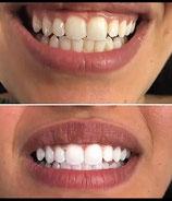 Formation Blanchiment dentaire américain à distance