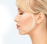 5er Paket: 5 Anwendungen Biolift - Basic (Gesicht)