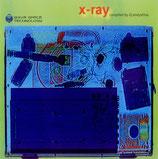 DJ Andyshiva* – X-Ray