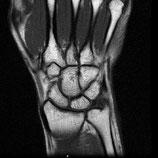 MRI Wrist RIGHT