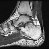 MRI Ankle RIGHT