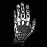 MRI Hand LEFT