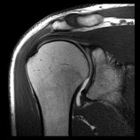 MRI Shoulder RIGHT