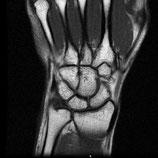 MRI Wrist LEFT