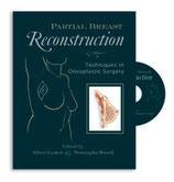 Losken/Hamdi: Partial Breast Reconstruction: Techniques in Oncoplastic Surgery