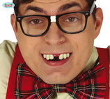 Nerd tanden