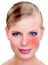Couperose/Rosacea Gesichtsbehandlung