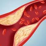Cholestérol Décoction bio