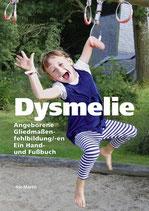 Dysmelie - Angeborene Gliedmaßenfehlbildung/-en. Ein Hand- und Fußbuch