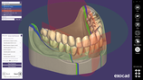 FULL DENTURE exocad Add-On-Modul Miete