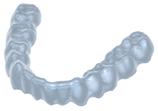 SCHIENEN (Bite Splint Module) exocad Add-On-Modul Miete