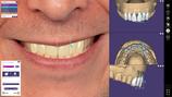 Smile Creator* exocad Add-On-Modul Kauf