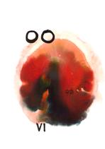 VI The Lovers | Die Liebenden