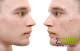 2Schön Akne Behandlung für Jugendliche