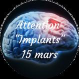 """210315 - Attention """"Les Implants"""""""