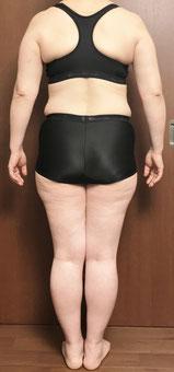 DNAパーソナル痩身3ヶ月コース 体験前