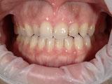 八戸市 ホワイトニング くぼた歯科 ポリリン