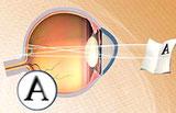L'astigmatismo.