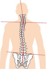腿裏が痛くて腰椎椎間板ヘルニアになった奈良県大和高田市の社員