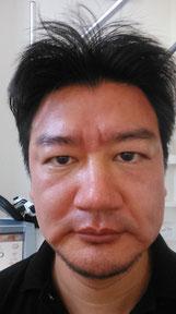 施術直後の顔
