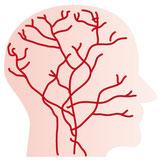 顔面神経痛 三叉神経痛の原因