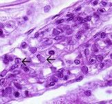 Ausschnitt der Kiemenre- gion einer juvenilen P. chinensismit WSSV. Fast ein Viertel der vorhandenen Zellen ist infiziert, Vergröße- rung 900fach. Färbung nach H.& E.Mayer-Bennett.
