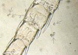 Garnelenlarve mit Glocken-tierchen befall. Ein starker Befall kann die Larven bei der Häutung behindern.