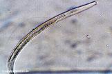 Nematoden können bei stark belastetem Wasser auftreten und eiertragende Weibchen befallen.