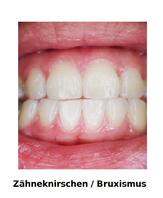 Zähne fest aufeinander beissen oder gegeneinander verschieben malmen