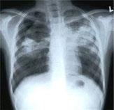 TUBERCULOSIS, TBC PEDIATRIA