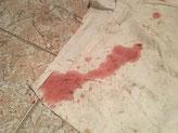Blutiger Durchfall