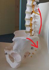 歩くのもつらい脊柱管狭窄症の奈良県大和高田市の女性