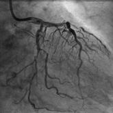 治療前の心カテ画像