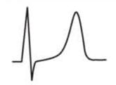 EKG T-Welle hochpositiv